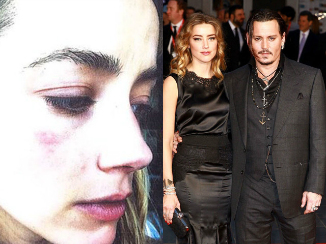 Actor submitted a photo of her bruised face to obtain a restraining order against estranged husband.