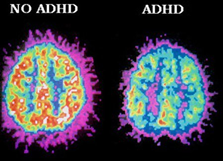 Adhd A Brain Disorder Not Just Bad Behaviour Study The Express Tribune