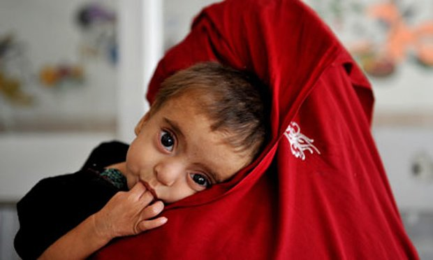 Last two years' statistics show that some 75% children under five were malnourished, Jhal Magsi DHO says. PHOTO: AFP