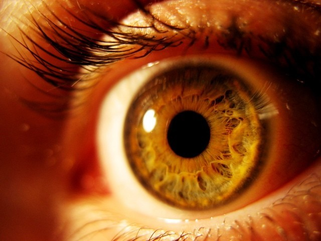 Mysterious eyeball disappearance disease was unexplainable till this research. STOCK IMAGE