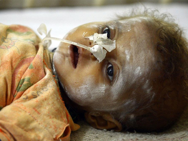 A child lays on a hospital bed in the desert region of Tharparkar. PHOTO: AFP